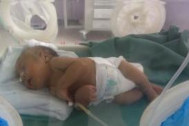 تقرير عام عن خسائر القطاع الصحي خلال 730 يوما من العدوان والحصار الأمريكي السعودي على اليمن …  أصدرته قطاع الطب العلاجي بوزارة الصحة العامة والسكان